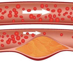 Que es la aterosclerosis, sintomas y como tratarla